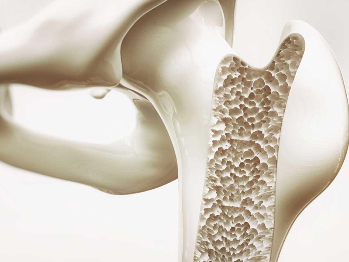 osteoarthritis at Allsports Physio